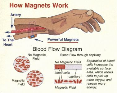 You Might Find This Shocking But A 2004 Study That Included Over 200 Partints With Osteoarthritis Found Using Magnetic Bracelet For 12 Weeks Helped