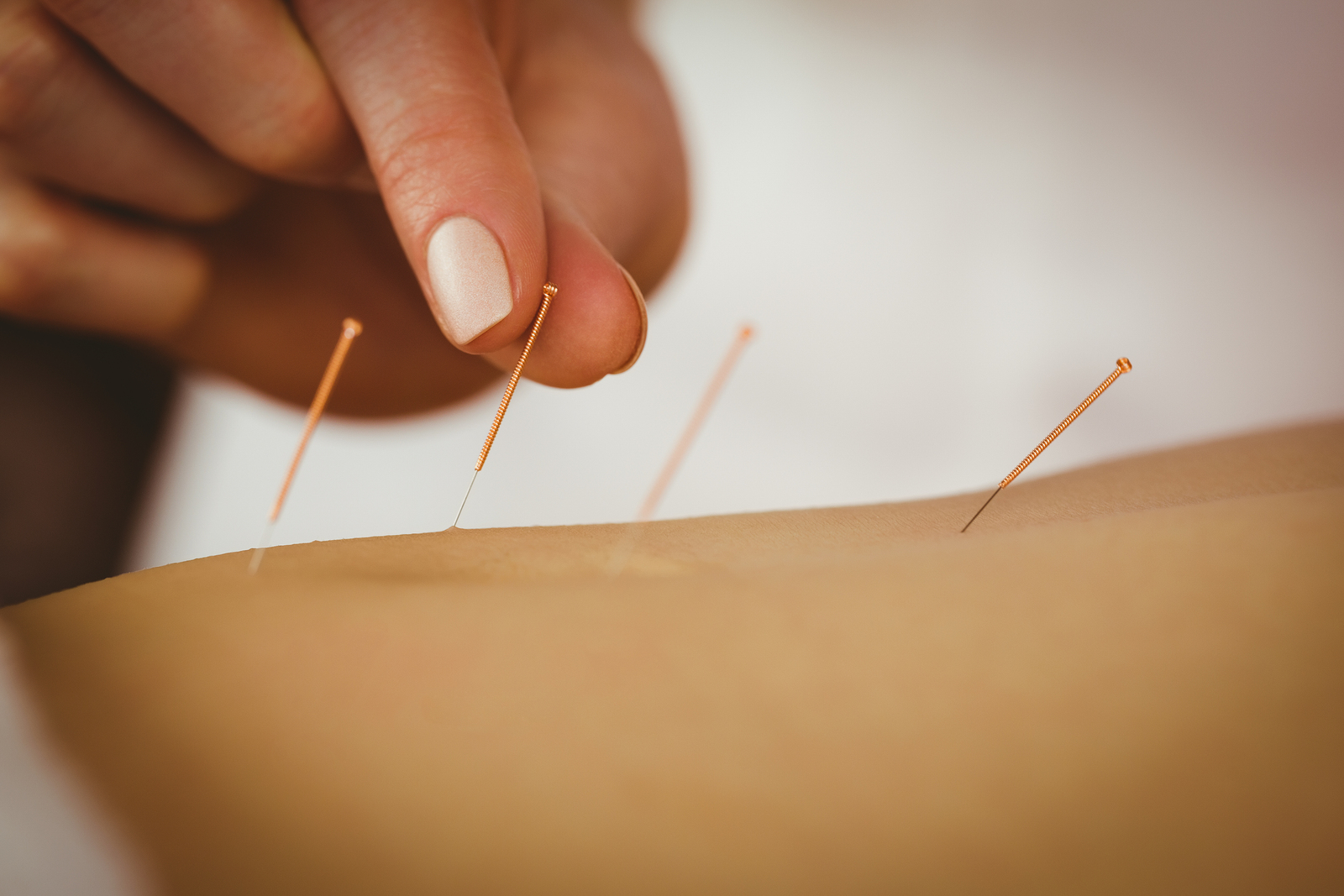 Acupuncture :Understanding What the Needle Poke Can Evoke